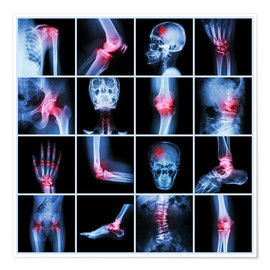 Póster Premium  Human joint, arthritis and stroke